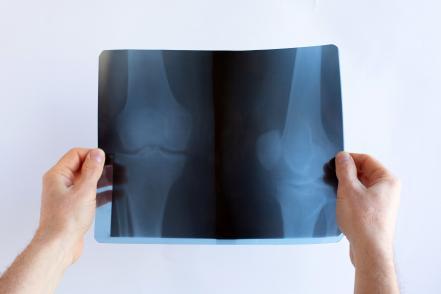 Artrózis röntgen