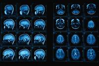 éhség éhségérzet teltségérzet agy hipotalamusz mri