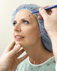 plasztikai sebész, páciens, arcplasztika
