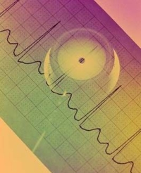 EKG-diagram és szetoszkóp, hirtelen szívhalál, szívroham