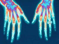 ízületi gyulladás, rheumatoid arthritis, fehérje
