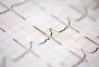 születéskor várható élettartam, szív-érrendszeri betegségek