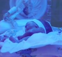 koraszülött csecsemő